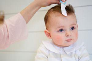 rụng tóc ở trẻ em