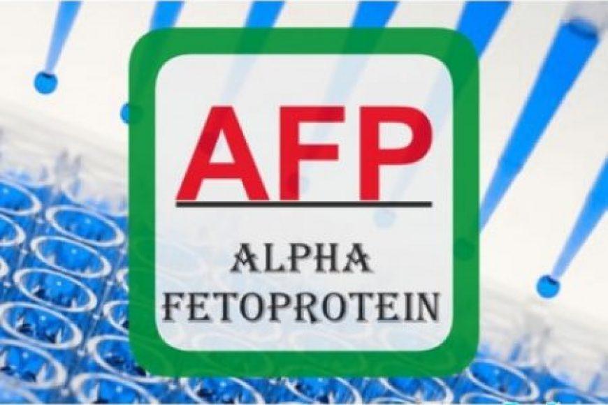 Nồng độ ALPHA-FETOPROTEIN giúp phân biệt dịch ối với nước tiểu, dịch âm đạo và tinh dịch