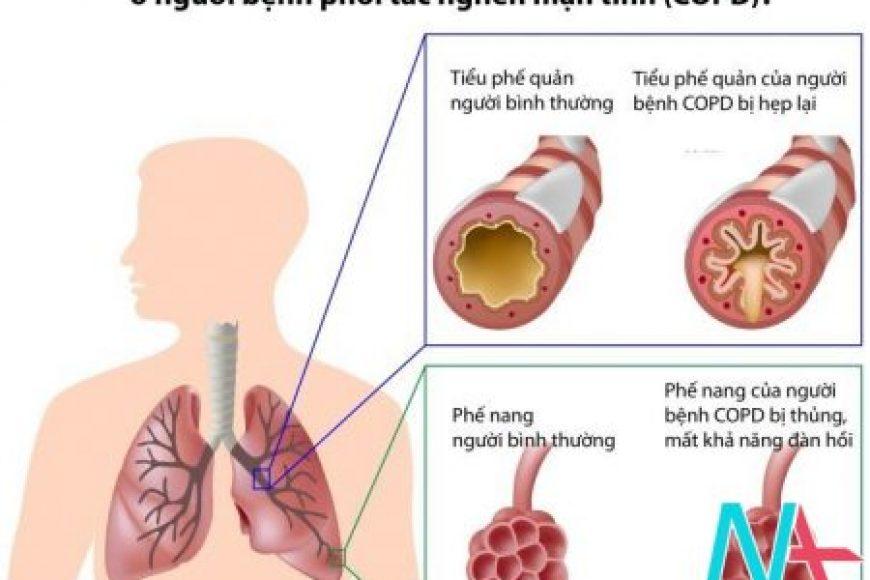 Sử dụng hợp lý các thuốc điều trị bệnh hen phế quản