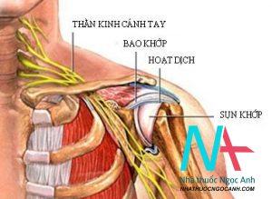 Điều trị viêm quanh khớp vai