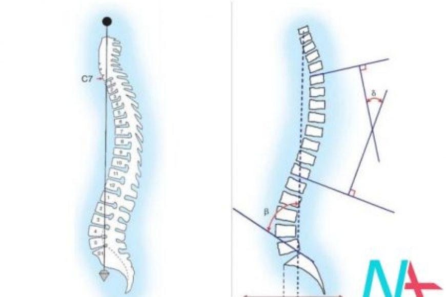 Liệu pháp hormone thay thế và gù lưng ở phụ nữ mãn kinh