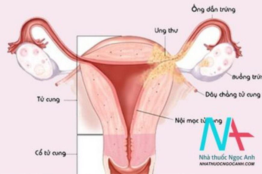 Ảnh hưởng của lạc tuyến cơ tử cung lên thai kỳ và kết cục chu sinh ở bệnh nhân lạc nội mạc tử cung