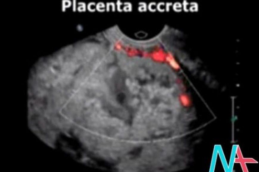 Sai lầm của cộng hưởng từ khi chẩn đoán dạng nhau cài răng lược thể Placenta Accreta