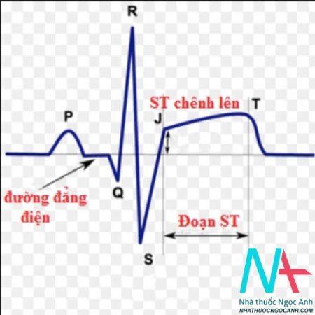điện tâm đồ tim