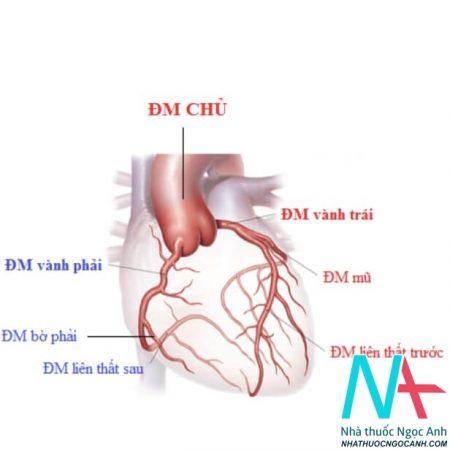 giải phẫu động mạch vành