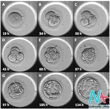 Tác động của bất thường nhiễm sắc thể lên động học hình thái phôi