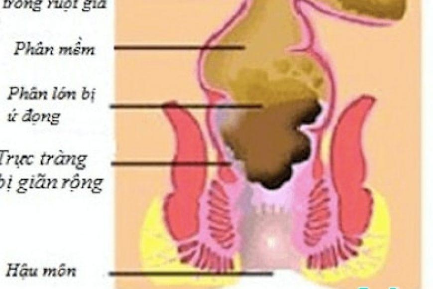 Thuốc nhuận tràng trong điều trị táo bón ở trẻ em
