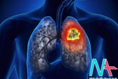 Âm tính ung thư phổi