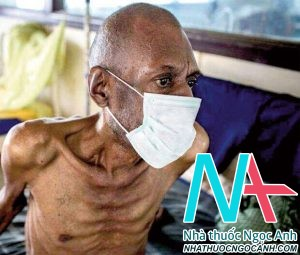 bệnh nhân lao phổi