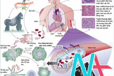 Tổng quan về bệnh do virus Ebola