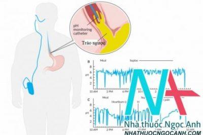Trào ngược dạ dày thực quản – Những điều cần biết và điều chỉnh cải thiện bệnh