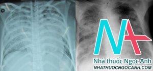 Hình ảnh tổn thương phổi ở người bệnh nhiễm cúm A H1N1