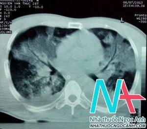 Hình ảnh chụp cắt lớp vi tính ngực: tổn thương thâm nhiễm lan tỏa 2 phổi