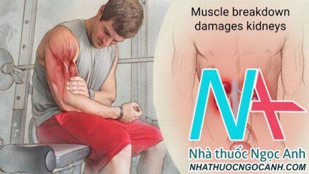 Hội chứng Tiêu cơ vân cấp