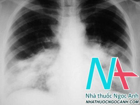 Hình ảnh XQ Viêm phổi