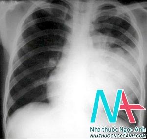 Hình ảnh chụp phim XQ của bệnh nhân Viêm phổi