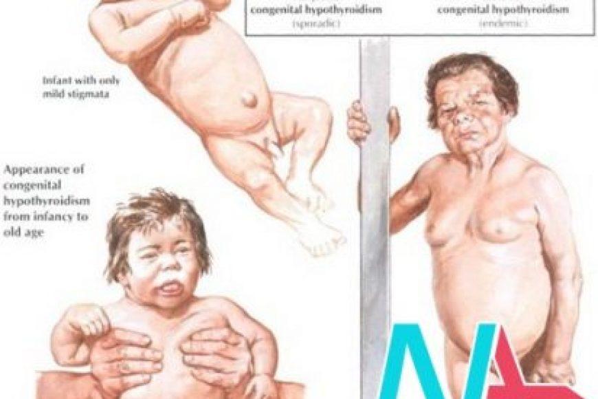SUY TUYẾN GIÁP BẨM SINH TIÊN PHÁT (Sporadic congenital hypothyroidism)