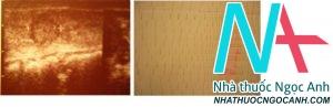Hình 4. Hình ảnh siêu âm và xạ hình u tuyến độc tuyến giáp