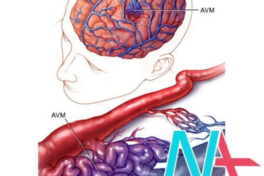 Tổng quan về dị dạng động tĩnh mạch não