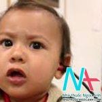 Chẩn đoán và điều trị điếc bẩm sinh cho trẻ em