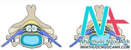 Hình minh họa: nhân nhầy thoát ra tạo thành khối thoát vị chèn ép vào rễ thần kinh gây ra bệnh