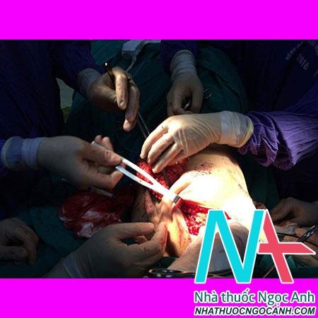 Phẫu thuật cắt tuyến vú, vét hạch nách và tạo hình đồng thời bằng vạt cơ lưng rộng