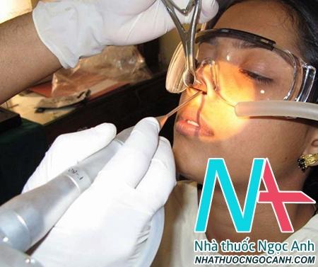 can thiệp nội soi phẫu thuật mũi xoang