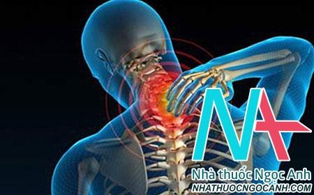 Hình ảnh minh họa vùng đau do thoát vị đĩa đệm cột sống cổ