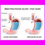 Trào ngược dạ dày thực quản và chế độ dinh dưỡng khuyến cáo