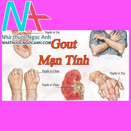 Các vị trí dễ bị lắng đọng tinh thể urat ở bệnh nhân gout