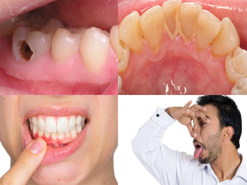 Các vấn đề về răng