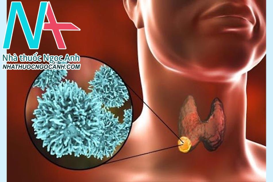 Các yếu tố nguy cơ của bệnh ung thư tuyến giáp
