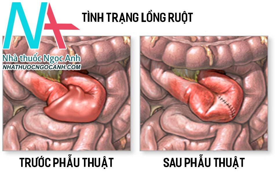 Tình trạng lồng ruột trước và sau khi được phẫu thuật