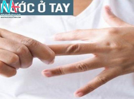 Mụn nước ở tay: Nguyên nhân, triệu chứng, cách điều trị và phòng tránh