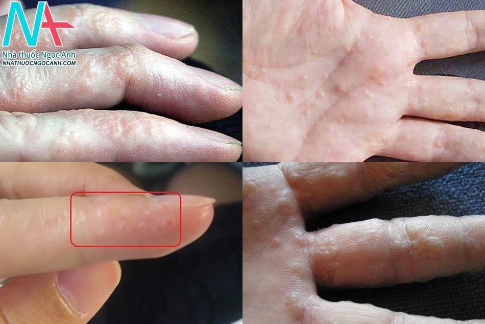 Nguyên nhân gây nổi mụn nước ở tay là gì?