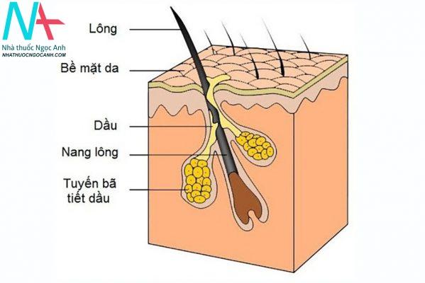 Da tăng tiết bã nhờn là một trong những nguyên nhân hình thành sợi bã nhờn