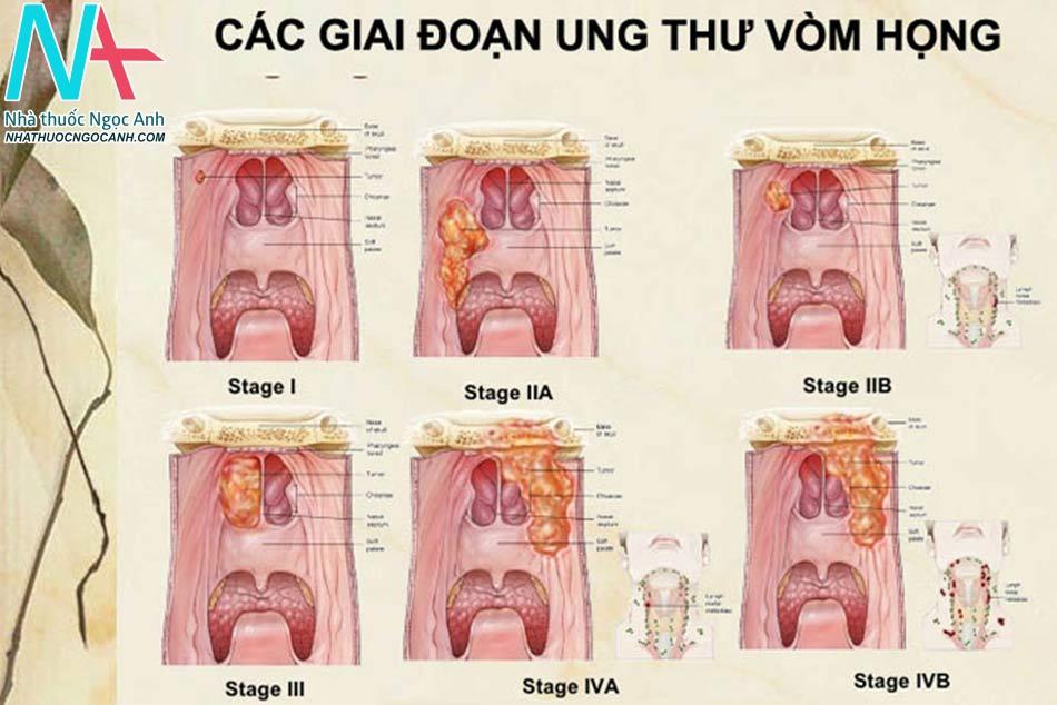 Các giai đoạn của ung thư vòm họng