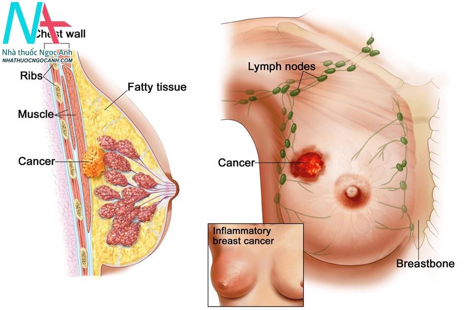 Dấu hiệu của ung thư vú