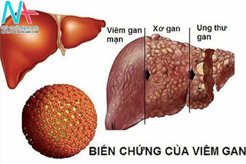 Biến chứng của bệnh Viêm gan B